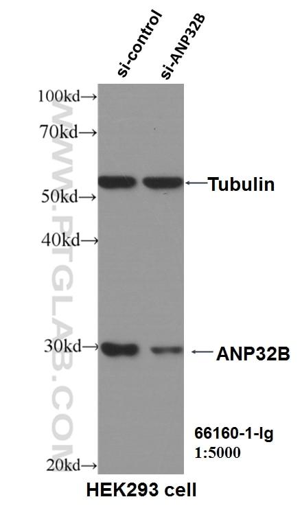 WB analysis of HEK-293 using 66160-1-Ig