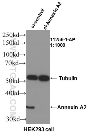 WB analysis of HEK-293 using 11256-1-AP