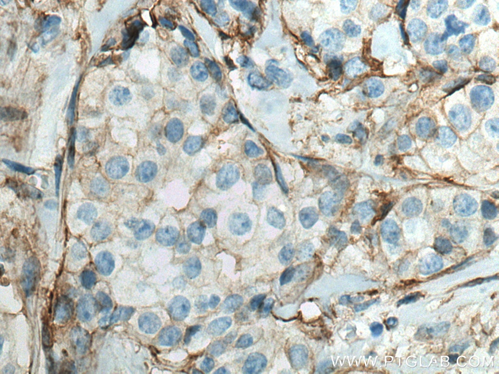 IHC staining of human breast cancer using 66035-1-Ig