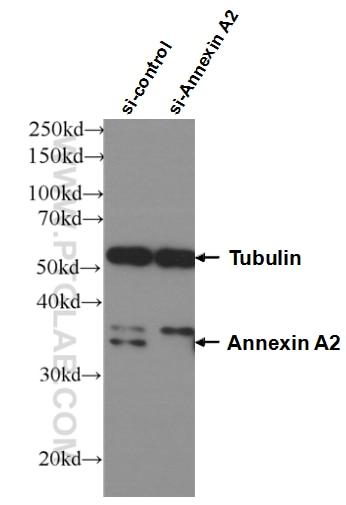 WB analysis of HEK-293 using 66035-1-Ig