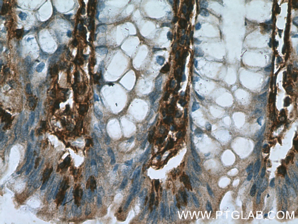 Annexin VI Polyclonal antibody