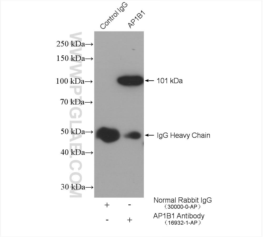 IP experiment of HEK-293 using 16932-1-AP