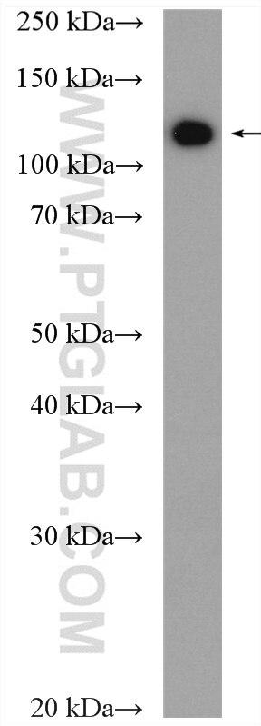 WB analysis of HepG2 using 16454-1-AP