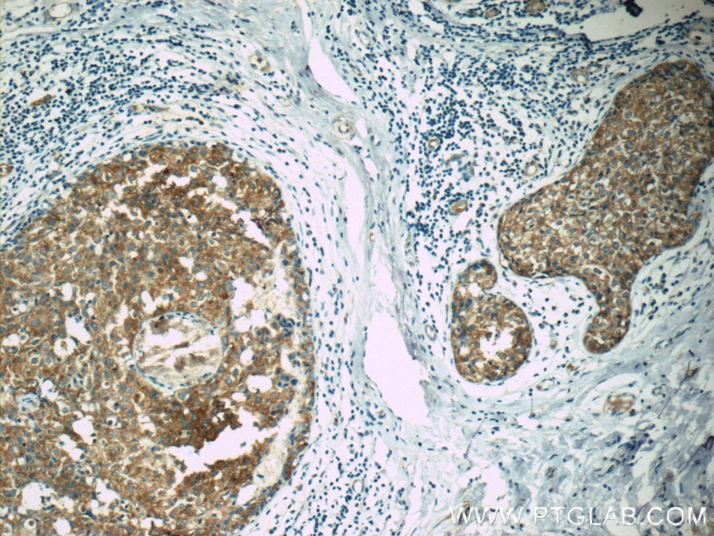 IHC staining of human breast cancer using 19782-1-AP