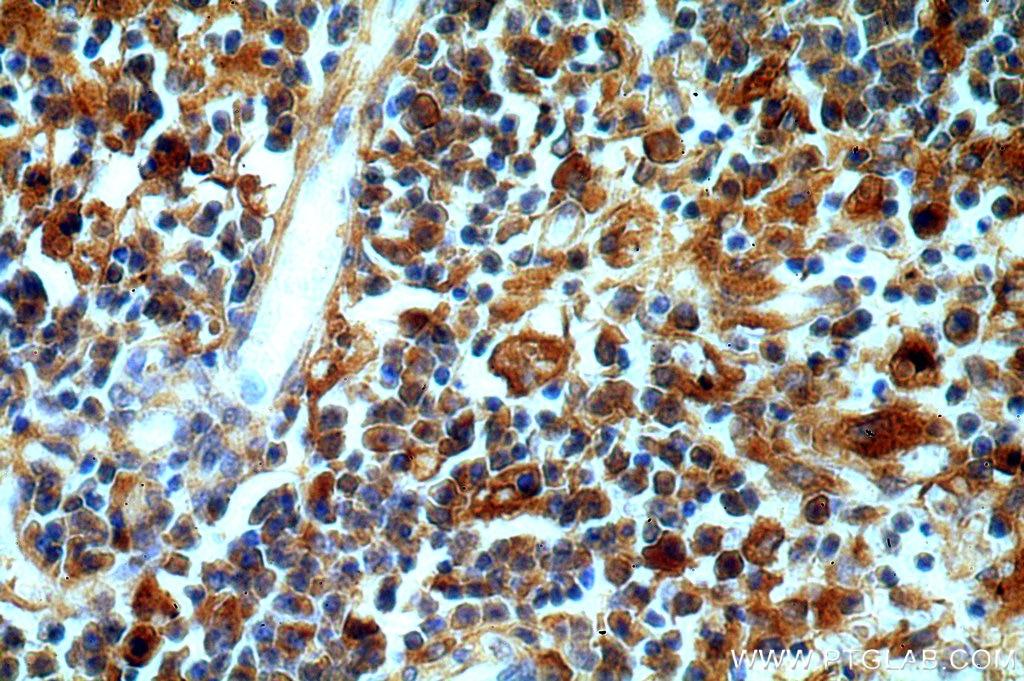 IHC staining of human spleen using 20773-1-AP