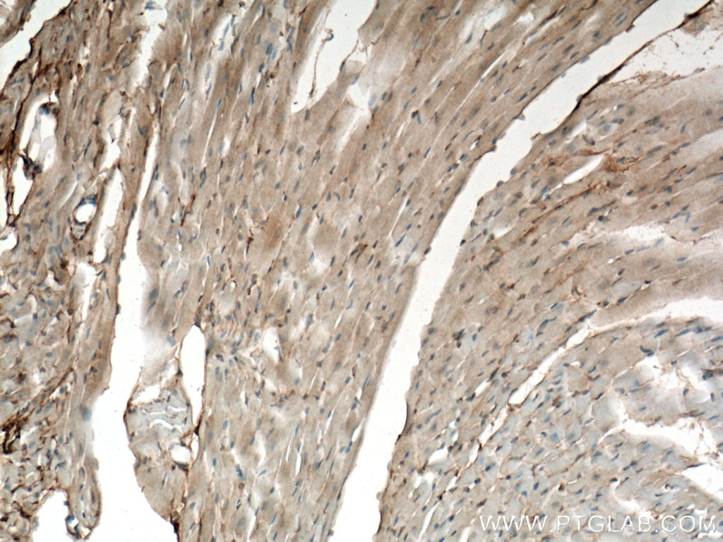 IHC staining of mouse heart using 11497-1-AP