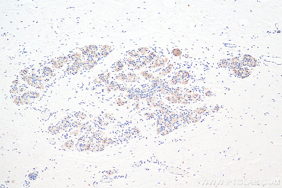 IHC staining of human breast cancer using 11497-1-AP