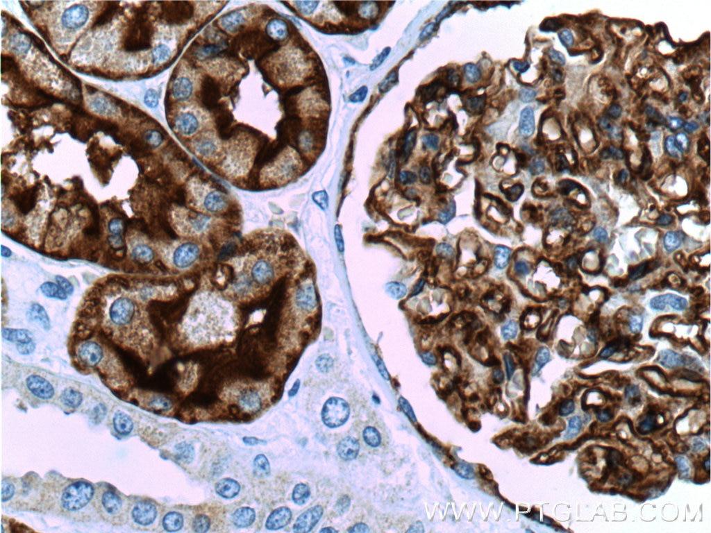 AQP1 Polyclonal antibody