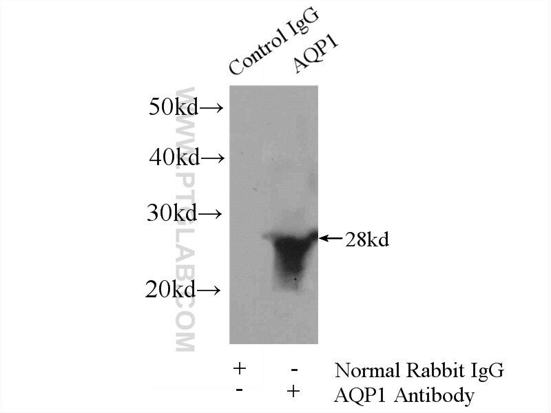 IP experiment of mouse skeletal muscle using 20333-1-AP