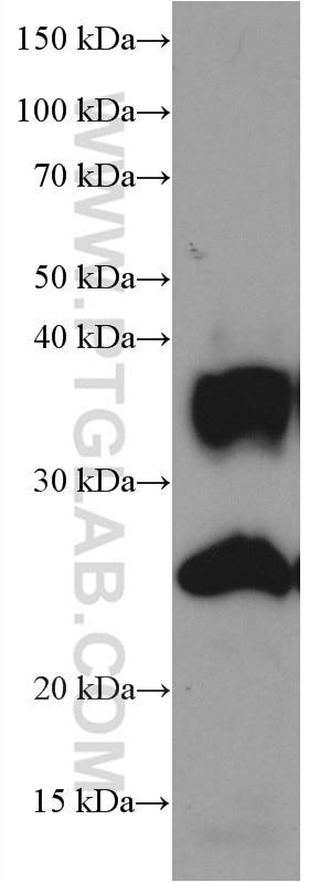 WB analysis of human heart using 66805-1-Ig
