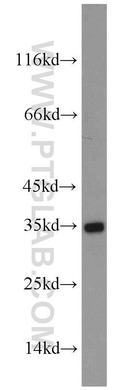 Aquaporin 4 Polyclonal antibody
