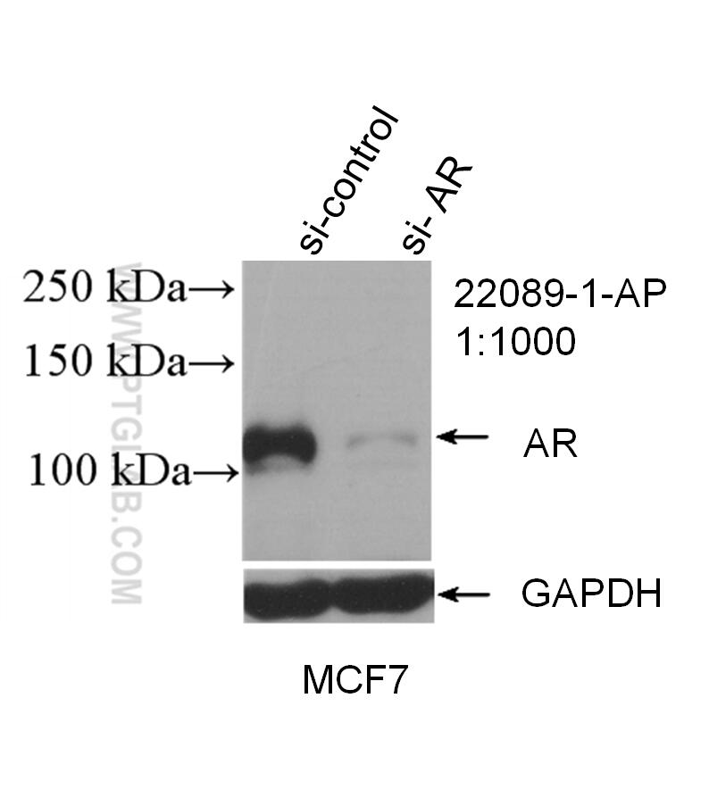 WB analysis of MCF-7 using 22089-1-AP