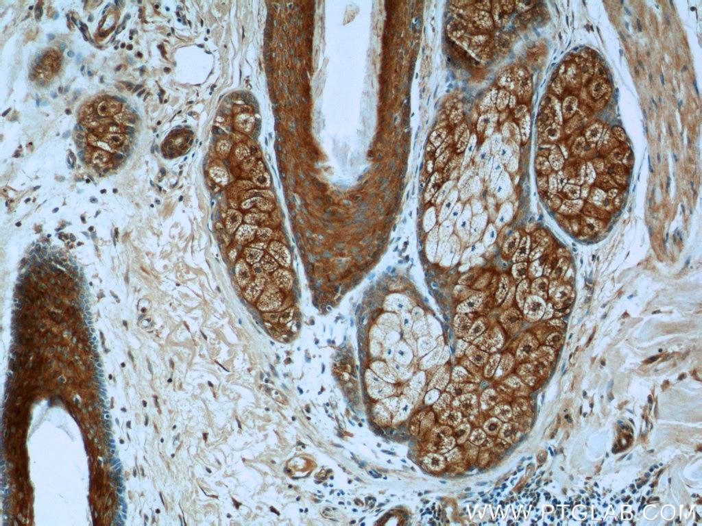 Immunohistochemistry of paraffin-embedded human skin cancer tissue slide  using 22129-1-AP( ARAF Antibody) at dilution of 1:50 (under 10x lens)