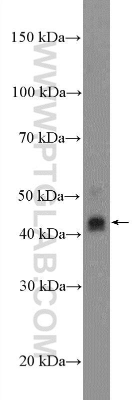 WB analysis of MCF-7 using 16036-1-AP