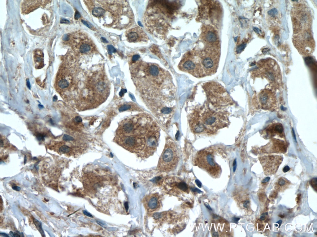 IHC staining of human breast cancer using 22077-1-AP