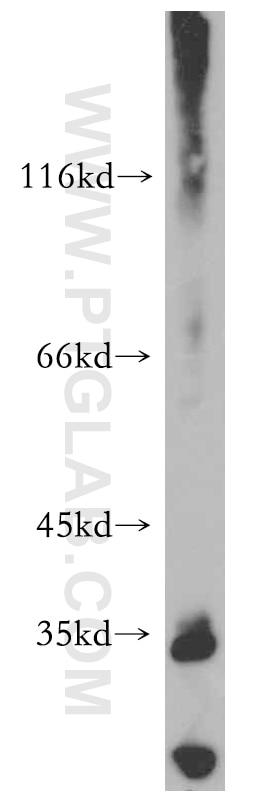 WB analysis of A431 using 20506-1-AP