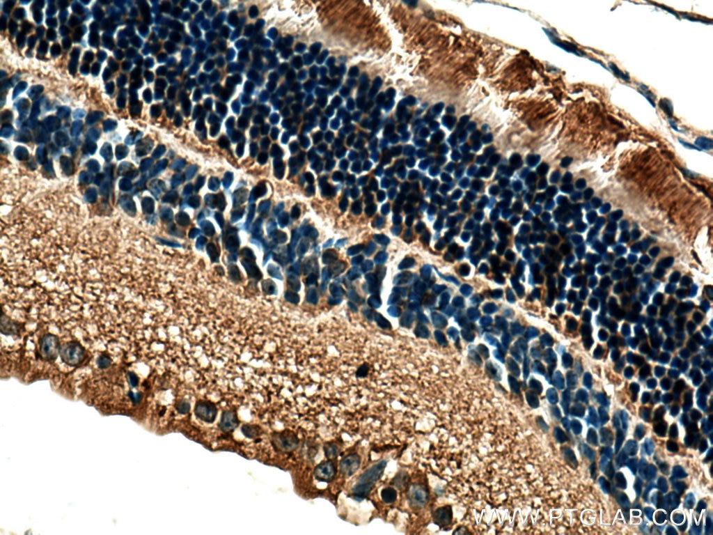IHC staining of mouse eye using 11100-2-AP