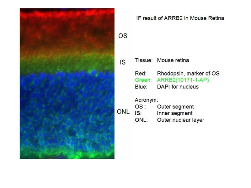 IF Staining of mouse Retina tissue using 10171-1-AP