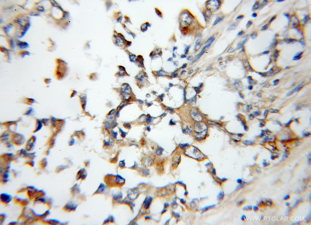IHC staining of human breast cancer using 11805-1-AP