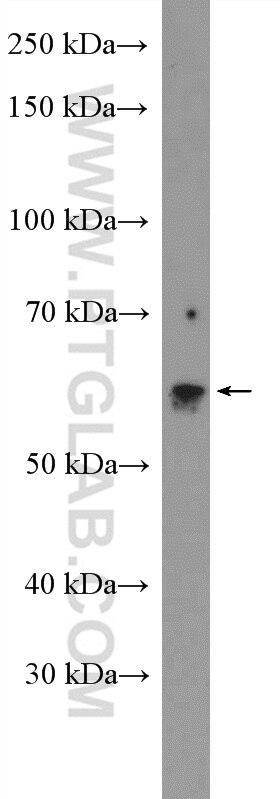 WB analysis of rat lung using 11274-1-AP
