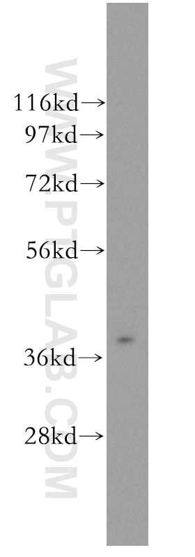 WB analysis of human liver using 11501-2-AP