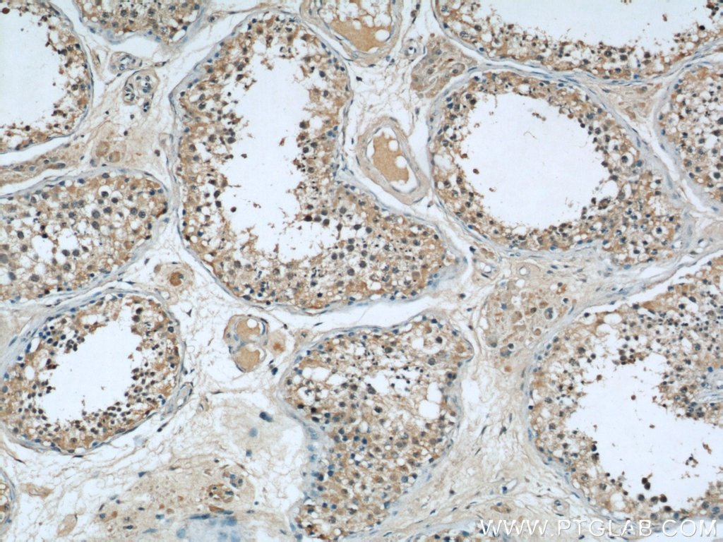 ASS1 IHC Immunohistochemistry 66036-1-Ig ASS1 Antibody ASS; CTLN1