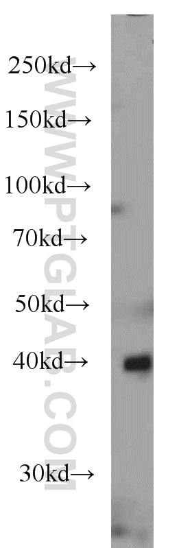 ASS1 western blot WB 66036-1-Ig ASS1 Antibody ASS; CTLN1