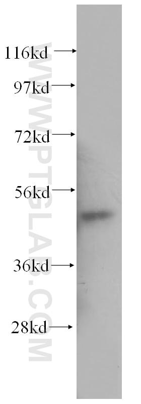 WB analysis of human bladder using 11122-1-AP