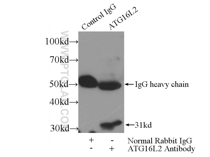 IP experiment of mouse testis using 24322-1-AP