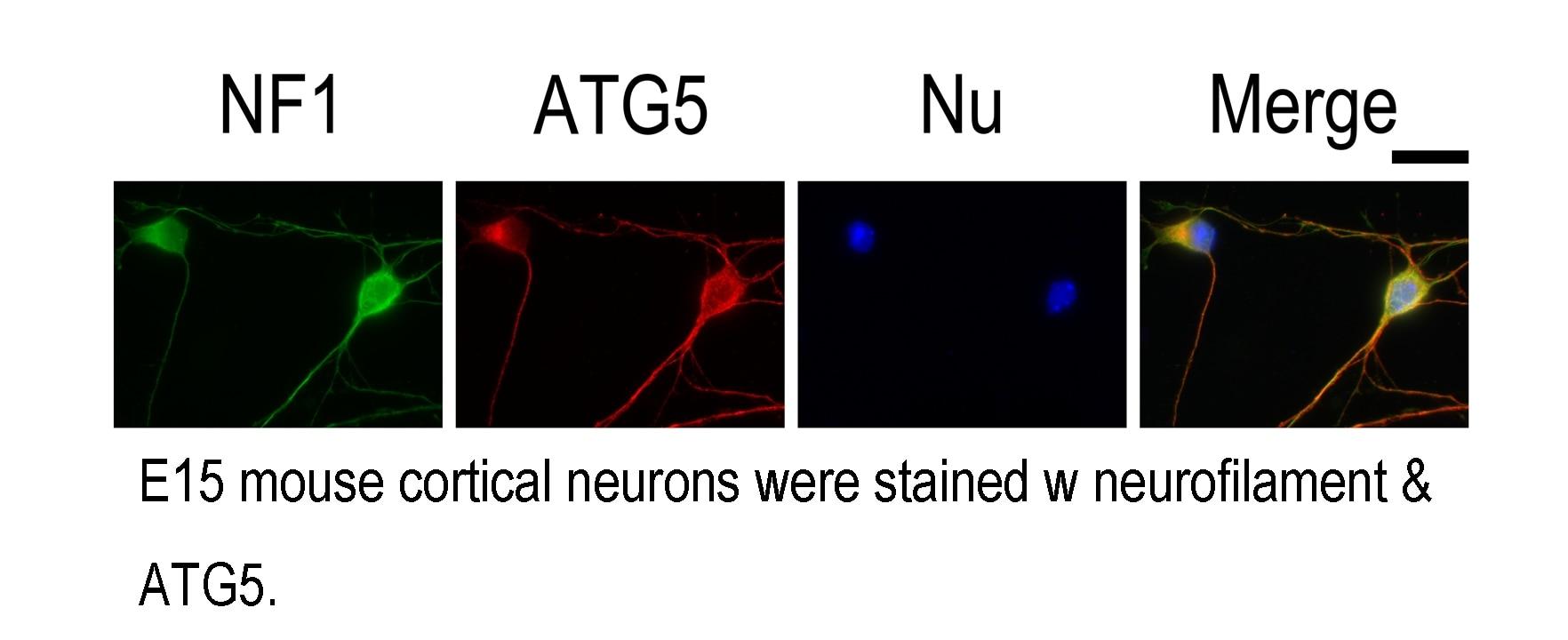ATG5 Polyclonal antibody