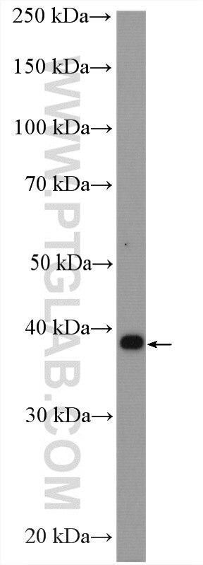 ATOH1 Rabbit Polyclonal antibody