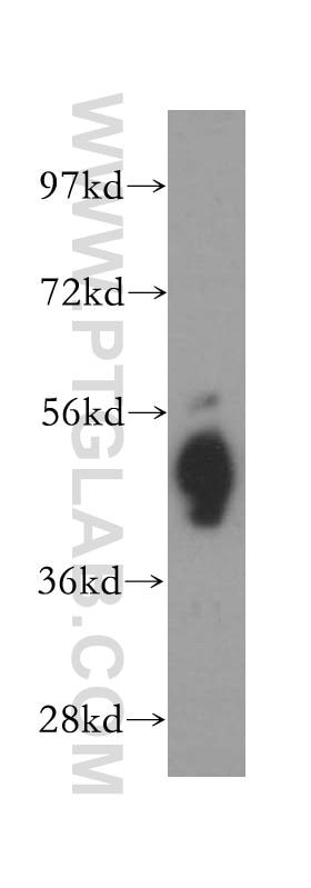ATP1B1