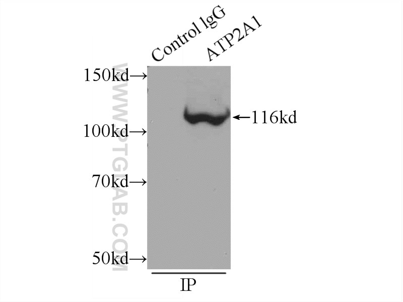 IP experiment of mouse skeletal muscle using 22361-1-AP