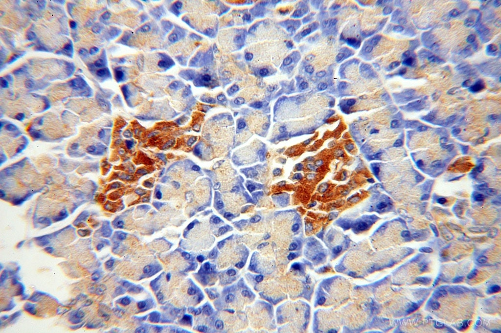 IHC staining of human pancreas using 17115-1-AP