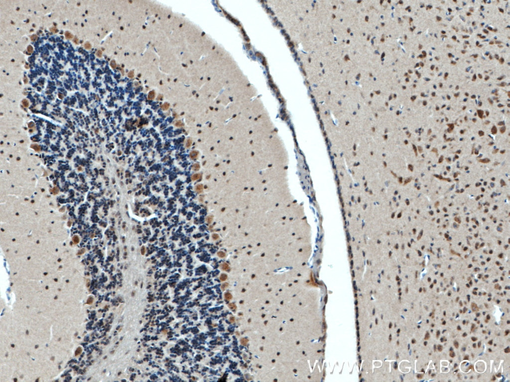 IHC staining of mouse brain using 19786-1-AP