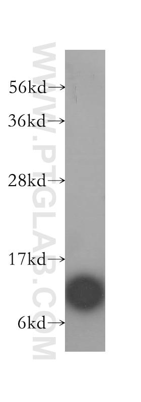 WB analysis of HeLa using 12067-1-AP