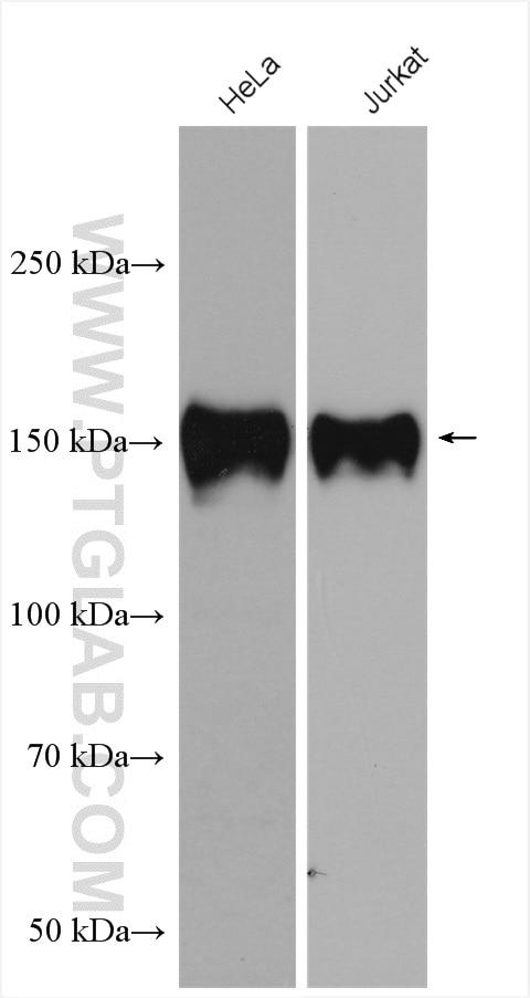 Ataxin 2 Polyclonal antibody