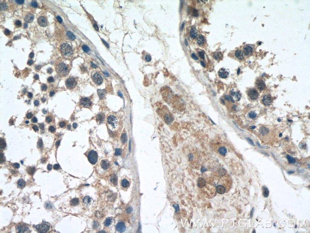 IHC staining of human testis using 24822-1-AP