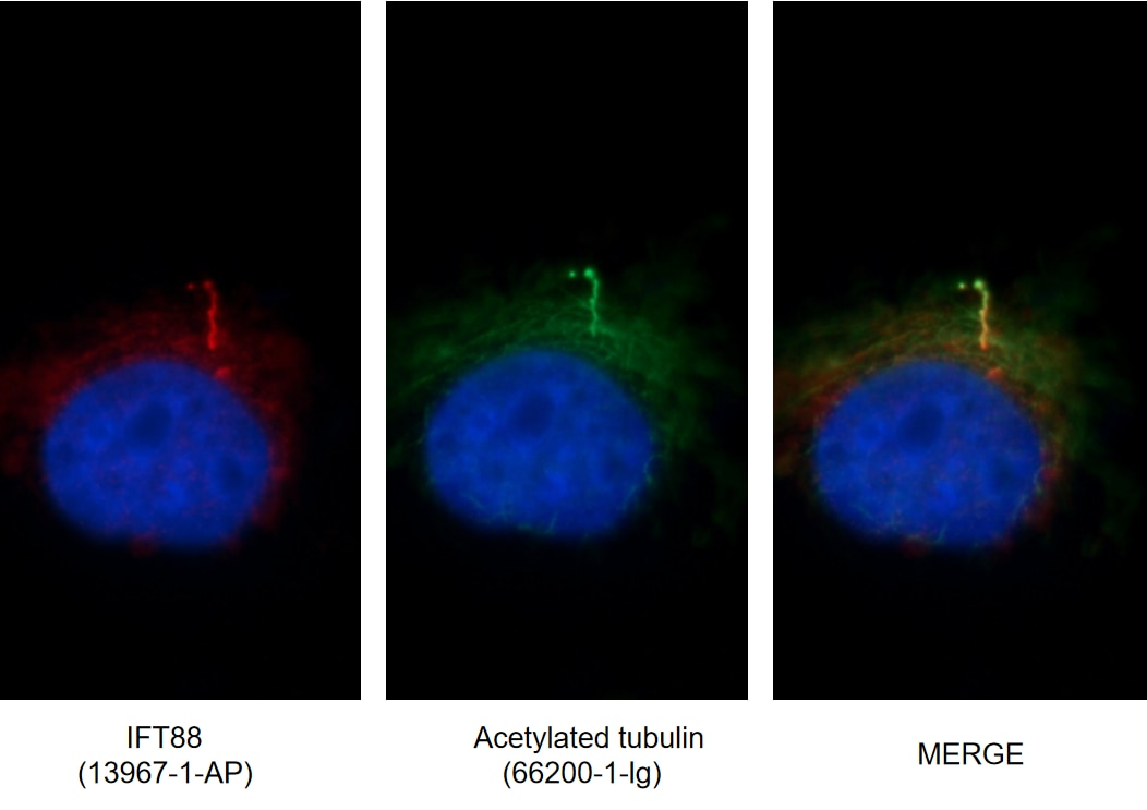 IF images of MDCK cells stained for IFT88 rabbit pAb (13967-1-AP) and acetylated tubulin mouse mAb (66200-1-Ig) at dilution of 1:50, further stained with Alexa Fluor 594-conjugated AffiniPure Goat Anti-Rabbit IgG (H+L) for 13967-1-AP, and Alexa Fluor 488-conjugated AffiniPure Goat anti-Mouse IgG (H+L) for 66200-1-Ig