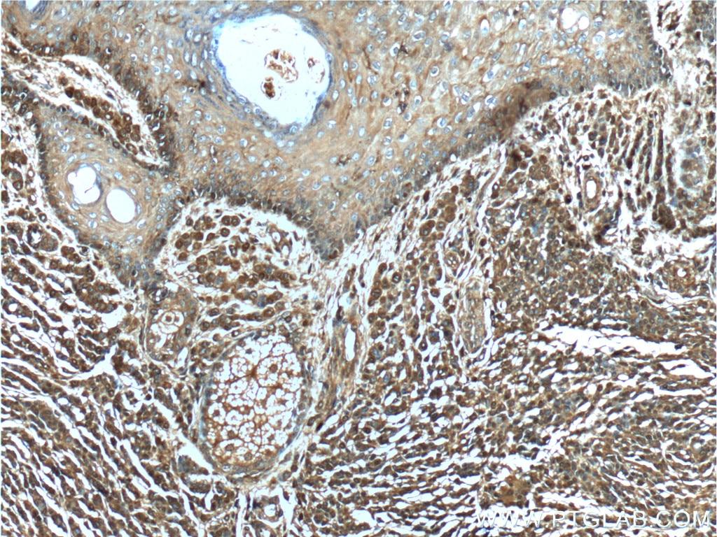 IHC staining of human malignant melanoma using 66245-1-Ig
