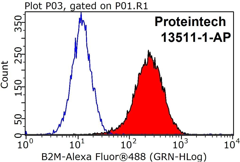 Beta-2-Microglobulin