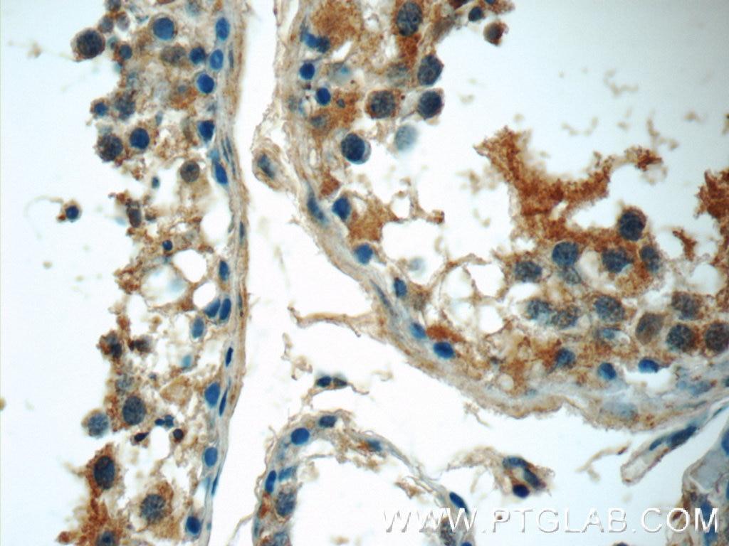 IHC staining of human testis using 24997-1-AP