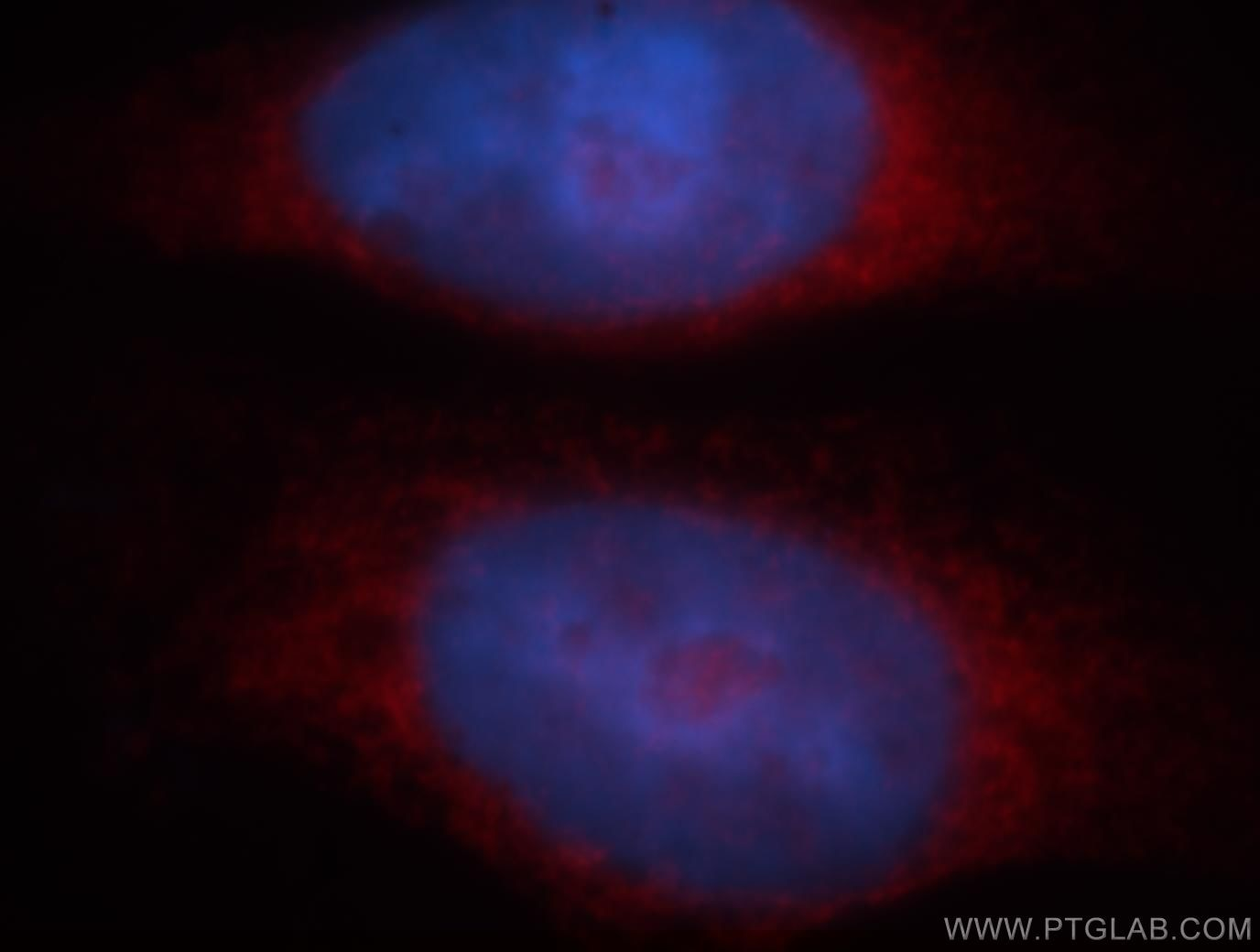 IF Staining of HeLa using 19064-1-AP