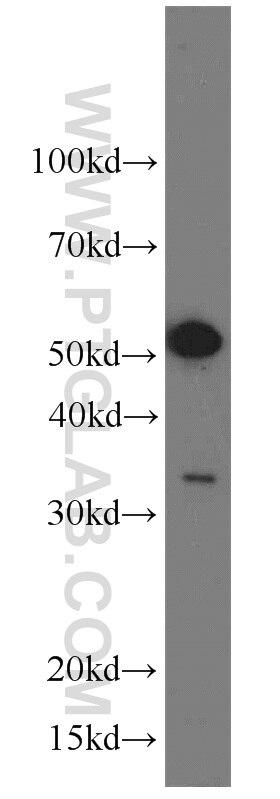 WB analysis of HeLa using 19064-1-AP