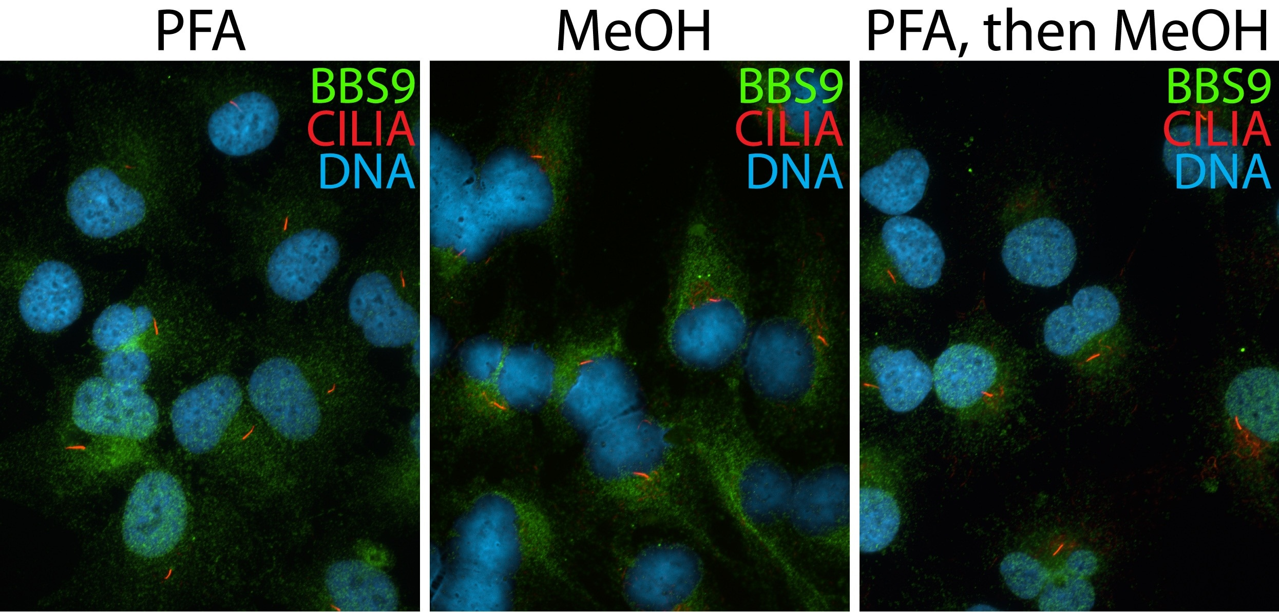 IF Staining of hTERT-RPE1 cells using 14460-1-AP