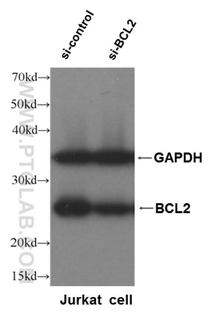 WB analysis of Jurkat cells using 12789-1-AP