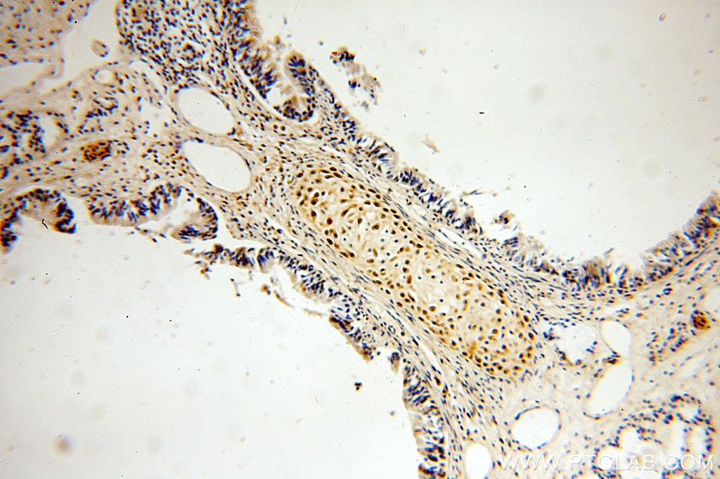 IHC staining of human lung using 18114-1-AP