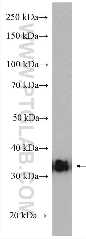 WB analysis of A549 using 12846-1-AP