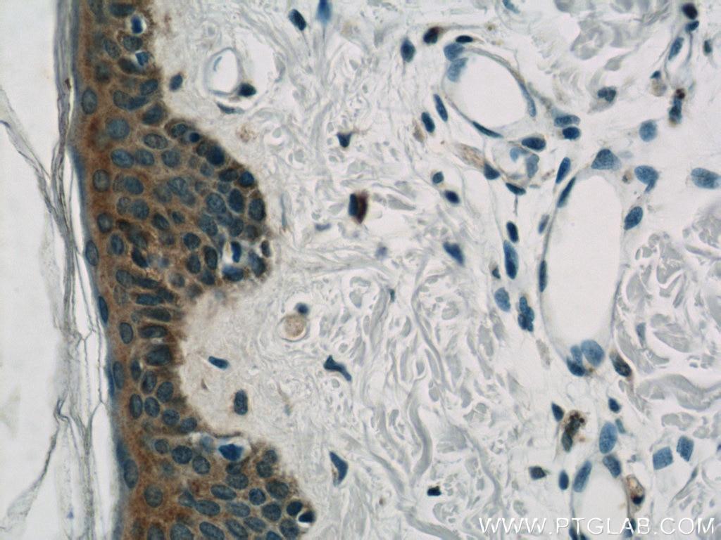 IHC staining of human skin using 22585-1-AP