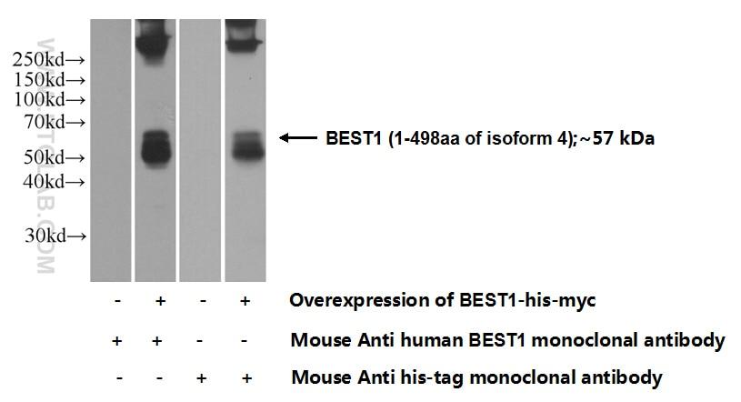 Bestrophin-1 Monoclonal antibody